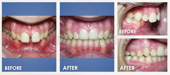 before braces image 1