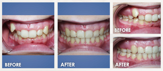 before braces image 2