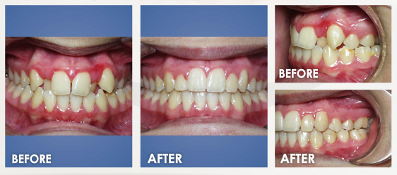 before braces image 3