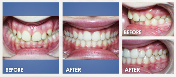 before braces image 4