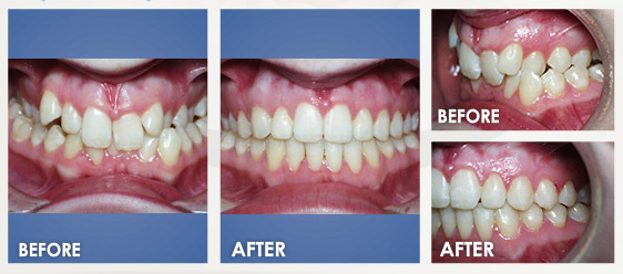 before braces image 6
