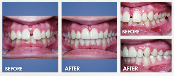 before braces image 7