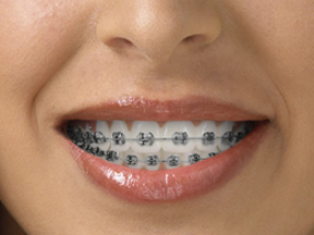 traditional silver braces