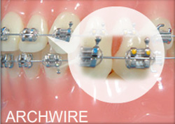 Archwire